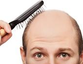 فقدان الشعر - أرشيفية
