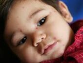 طفل مصاب بالجدرى-صورة ارشيفيه