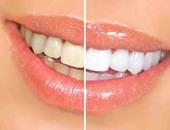 المواد الطبيعية لتحويل أسنانك الصفراء إلى أسنان ناصعة البياض