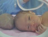 الطفل قبل اجراء العملية
