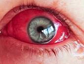 العين  - أرشيفية