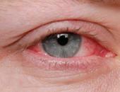 التهابات العين - أرشيفية