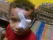 أحد الأطفال المصابين