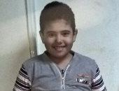 طفل مصاب بمرض الهيموفيليا