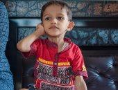 طفل يولد بساق أربعة أضعاف الحجم الطبيعى بسبب متلازمة نادرة