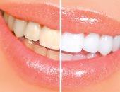 تصبغات الاسنان والعوامل المتحكمة بها