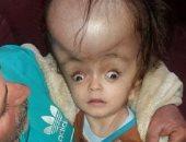 طفل مصاب بماء على المخ