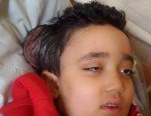 محمد الطفل المصاب بالورم
