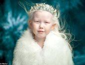 الطفلة ألبينو الملقبة بسنو وايت