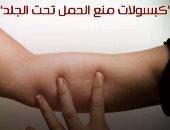 كبسولات منع الحمل تحت الجلد