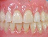 أسنان - أرشيفية