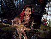 سوء التغذية عند أطفال العالم