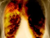علاج سرطان الرئة بين العمليات الجراحية والعلاج الاشعاعى
