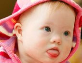 طفل منغولي