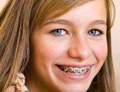 خطوات الحفاظ على تقويم الأسنان من البكتيريا