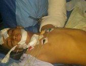 زراعة ذراع كامل لطفل بعد حادث