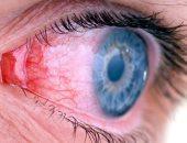 التهاب العين-صورة أرشيفية