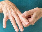التهاب المفاصل الروماتويدى -صورة أرشيفية