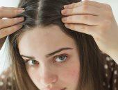 مشاكل الشعر الدهنى ـ صورة أرشيفية
