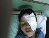 """أحمد عادل محمد"""" تلميذ بالصف الثاني الابتدائي، مصابًا بفقأ عينه"""