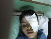 """الطالب """"أحمد"""" ذو 7 سنوات يفقد إحدى عينيه بمدرسة بالشرقية"""