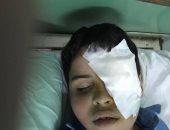 الطفل المصاب بفقء عينه على يد زميله بمدرسة