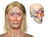التهاب الجيوب الأنفية-ارشيفية
