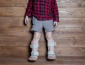 الكساح عند الاطفال-صورة ارشيفية