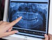 الاشعة السينية على الاسنان