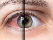 مشاكل العين-صورة ارشيفية