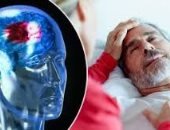 السكتة الدماغية - صورة أرشيفية