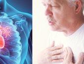 أمراض القلب - صورة أرشيفية