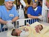 عملية فصل التوأم