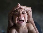 طفل مصاب بفيروس زيكا