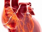 مشاكل القلب - صورة ارشيفية