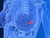 سرطان الثدى