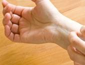 داء الليشمانيات يدمر الجلد