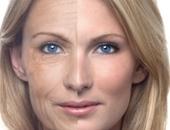 التجاعيد تجعل المرأة تبدو أكبر عمرًا