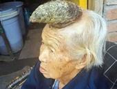 شامة على رأس سيدة بطول 13 بوصة على شكل قرن