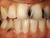 تسوس الأسنان - أرشيفية