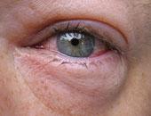انتفاخ العين بسبب العمل لوقت طويل أو التعرض للعديد من المشكلات