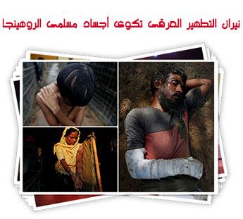 نيران التطهير العرقى تكوى أجساد مسلمى الروهينجا