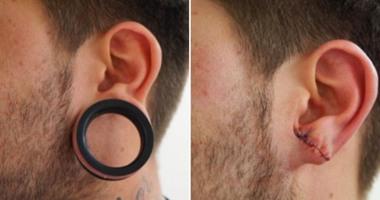 كليك نيوز زيادة نسبة جراحات شق شحمة الأذن بين الشباب الأوروبى اليوم السابع