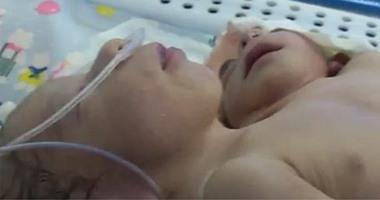سيدة تلد طفلاً برأسين وقلبين فى المنوفية بعد تأخر إنجاب لمدة 5 سنوات