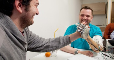 سويدية مبتورة اليد تبتكر يد روبوت قادرة على الإحساس والتمييز