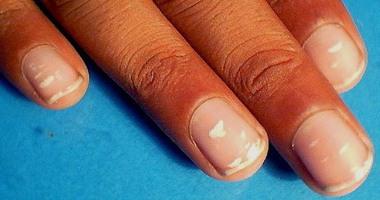 استشارى تغذية البقع البيضاء على الأظافر بسبب نقص الزنك وليس الكالسيوم اليوم السابع