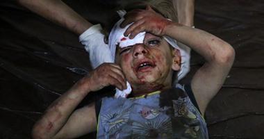"""""""أطباء بلا حدود"""": 1005 قتلى و4829 جريحا فى أسبوعين فقط بالغوطة السورية"""