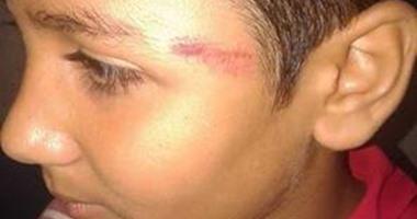 التحقيق مع معلمة تعدت على طالب بضربه على وجهه فى كفر الشيخ