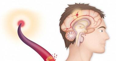 أعراض السكتة الدماغية.. الدوخة وصعوبة الكلام أهمها
