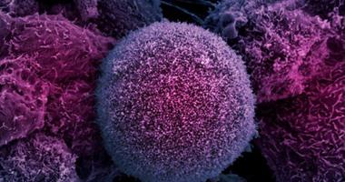 باحثون مصريون يتوصلون لاختبار جديد لتشخيص سرطان البنكرياس مبكرا